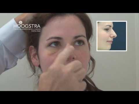 Rinoplastía - Cirugía Estética de Nariz (14012)