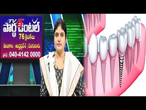 Dental Problems & Treatments   New Dental Implant Technologies   Health File   TV5 News