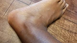 Bee Sting on The Foot | How to Treat