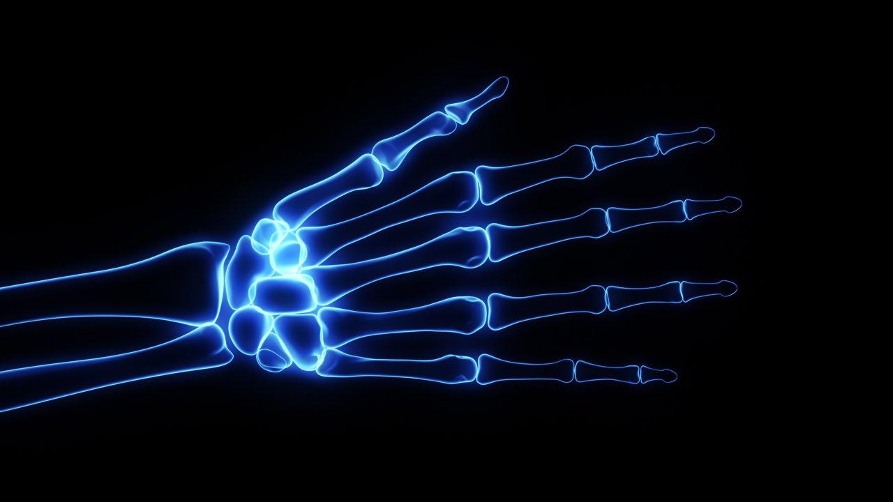 Bones X-Ray of Human Hand - YouTube