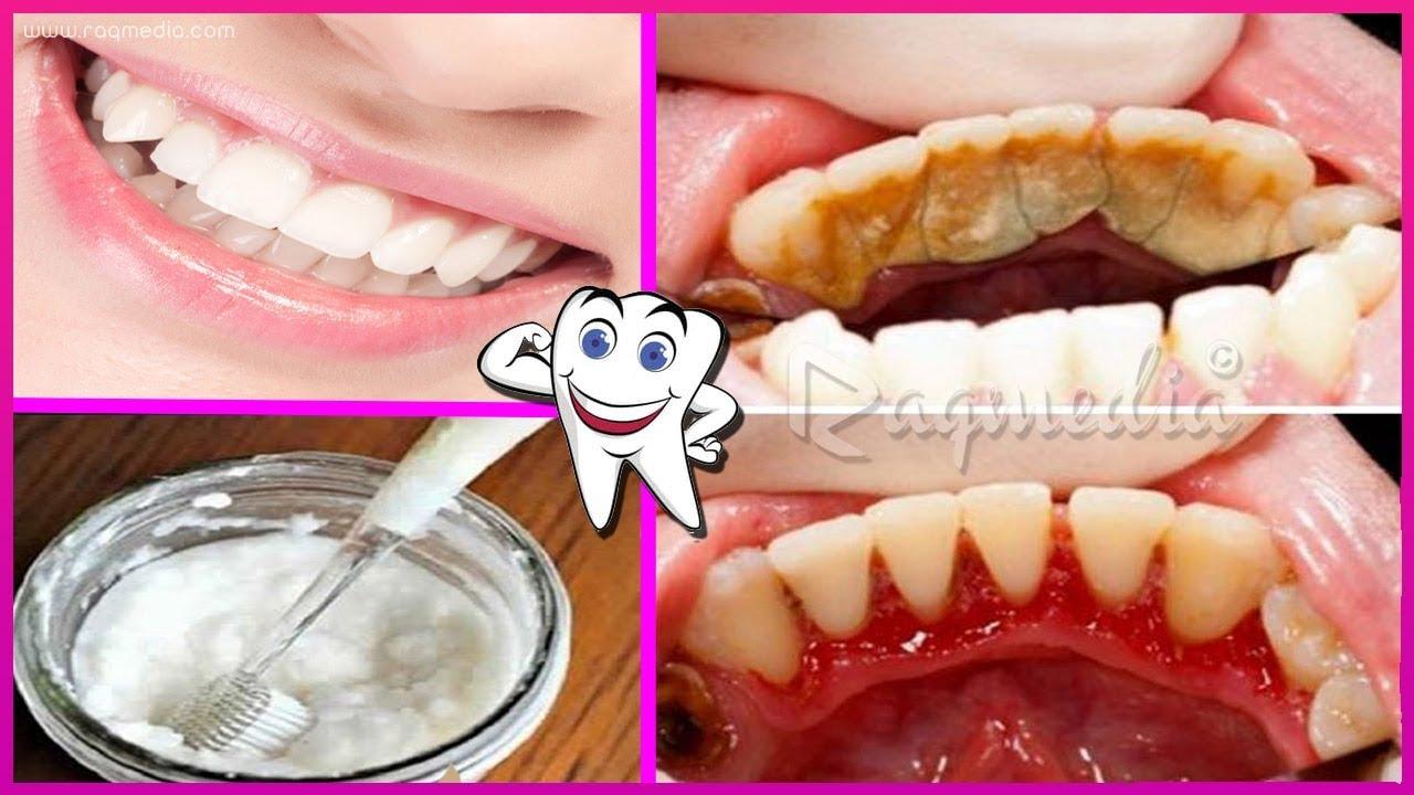 وصفة مجربة لازالة الجير وتبييض الاسنان في يوم واحد فقط Youtube