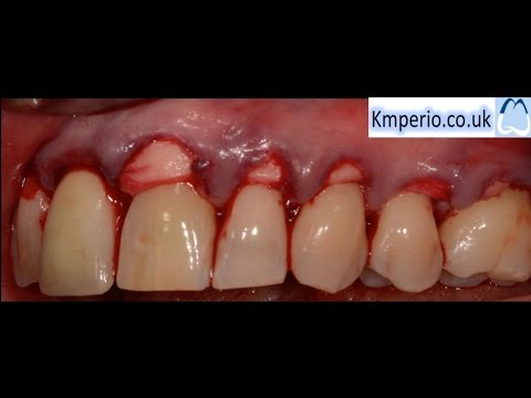 Alloderm Periodontal Surgery for Gum Recession/Grafting/Root Coverage-Upper Teeth.