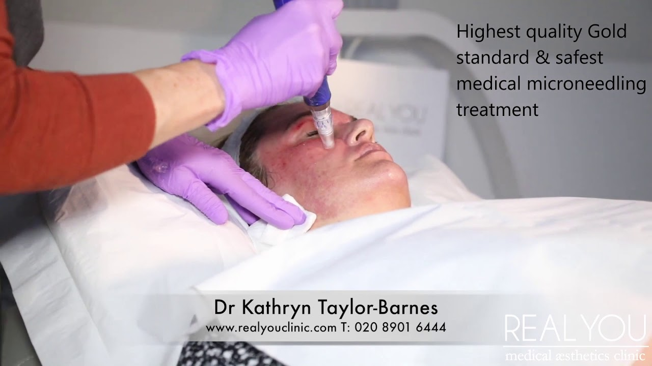 Micro-needling with SkinPen is collagen boosting available with Dr Kathryn  at Real You Clinic