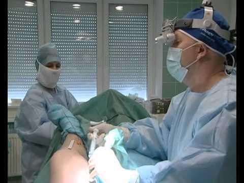 Операция по удалению вен на ногах лазером отзывы