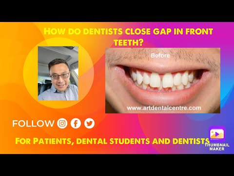Closing Front Teeth Gap with Braces-Loc Q. Huynh, Dentist***** - YouTube