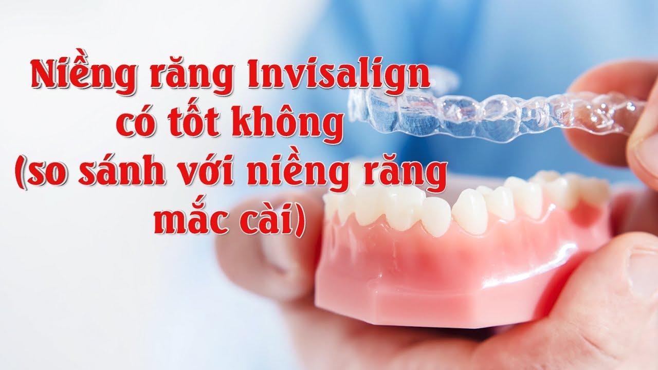 Niềng răng invisalign có tốt không? So sánh với niềng răng mắc cài thì cái nào tốt hơn?