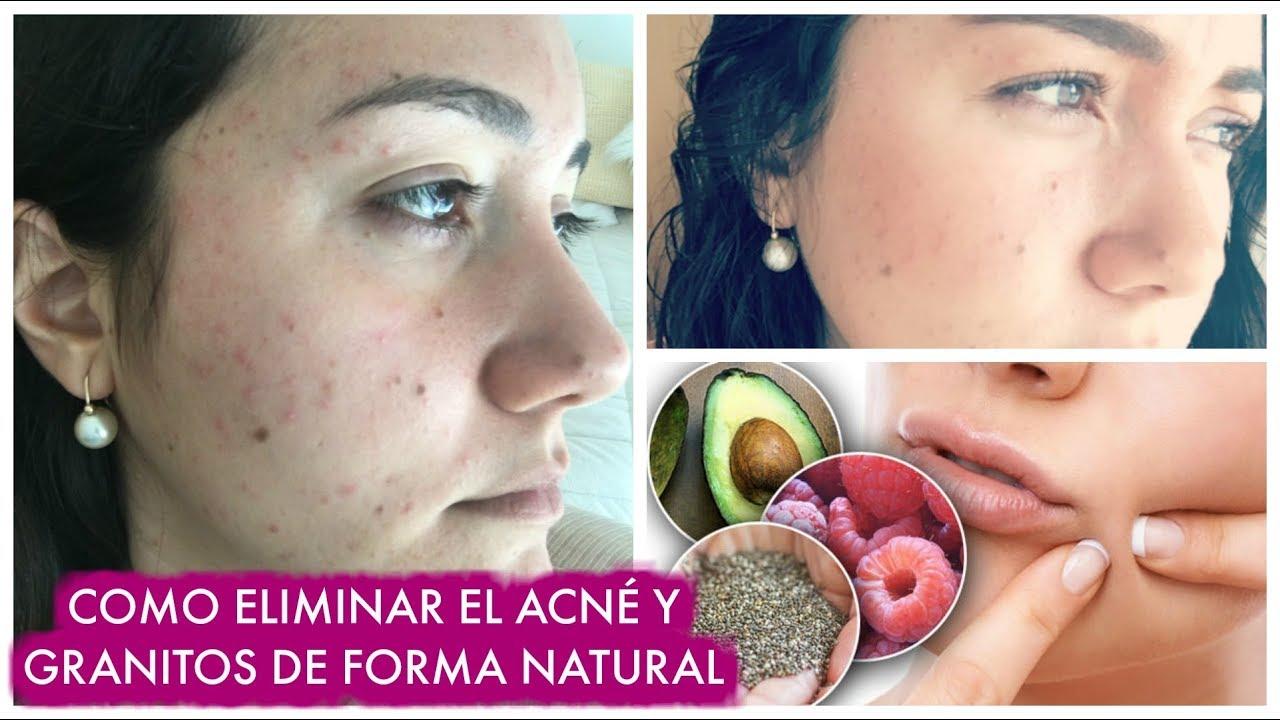 alimentos para eliminar el acne hormonal