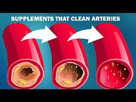 7 Best supplements that will clean your arteries naturally at home