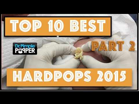 My Top 10 BEST Hard Pops of 2015: Cysts - Part 2, #1-#4