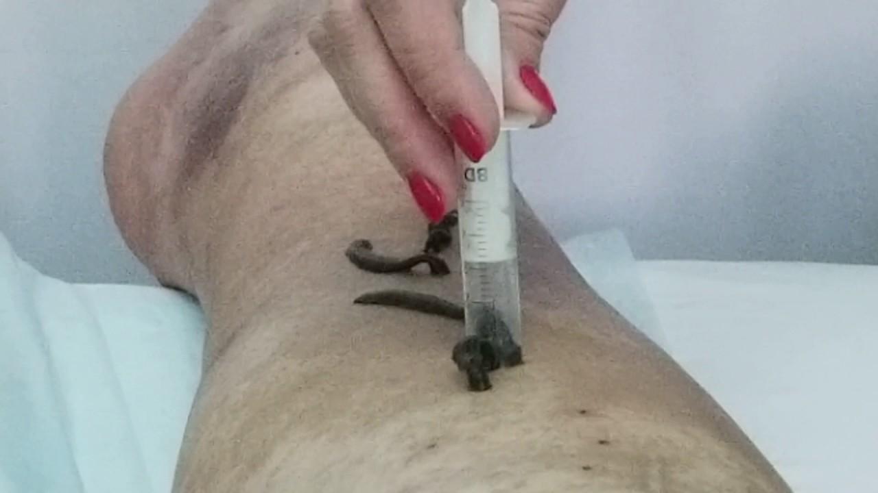 varicosera leech
