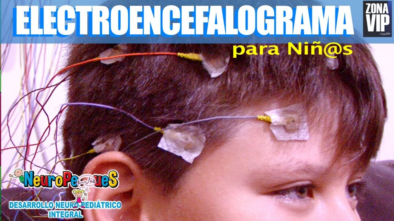 Es electroencefalograma un que para