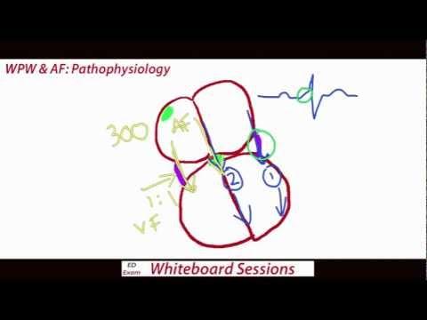 EDExam Whiteboard Session 1 - WPW & AF - YouTube