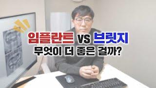 임플란트 vs 브릿지 무엇이 더 좋은 걸까?