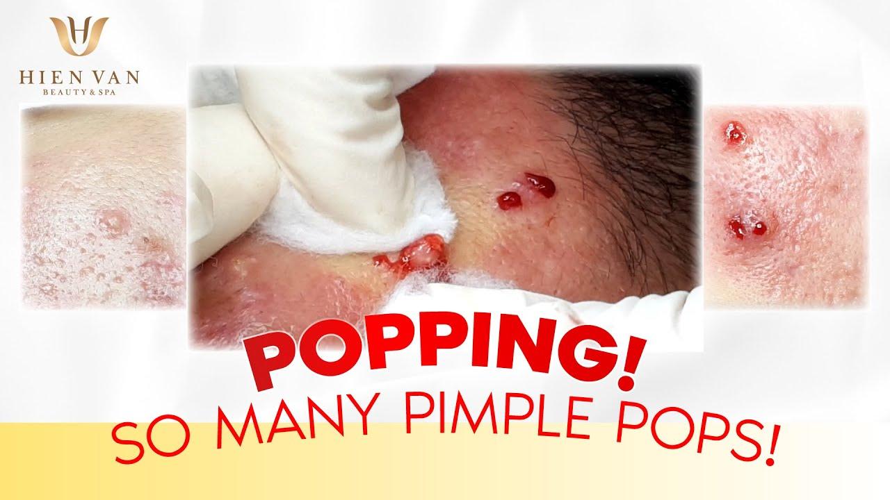 Popping! So Many Pimple Pops! Điều trị mụn hiệu quả nhất TPHCM tại Hiền Vân Spa