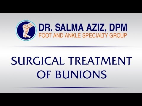 Surgical Treatment for Bunions by Dr Salma Aziz at Foot and Ankle Specialty Group in Orange County