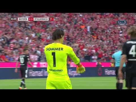 GOL: Bayern Munich 2-1 Borussia Mönchengladbach
