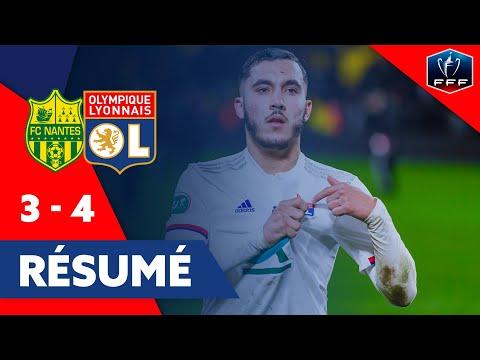 Résumé Nantes - OL | Coupe de France | Olympique Lyonnais
