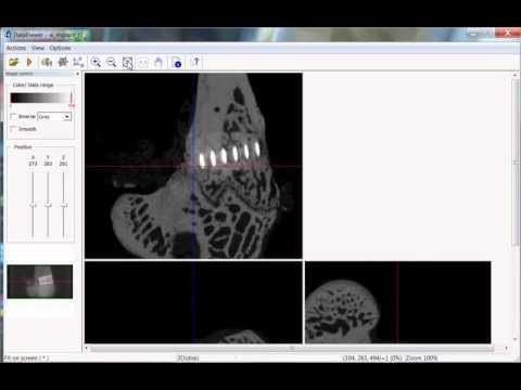 Bruker microCT training video: Introduction to dataviewer