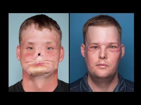 Man receives face transplant after suicide attempt