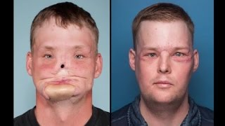 Man receives face transplant after suicide attempt