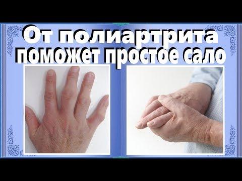 От полиартрита поможет простое сало.  Испытанный народный рецепт от полиартрита