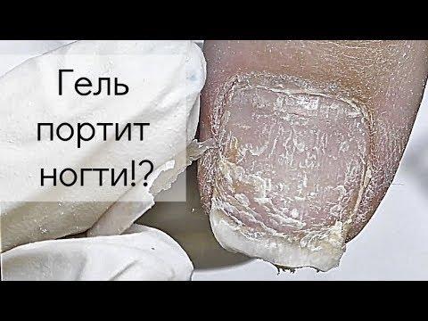 Портит ли ногти гель лак