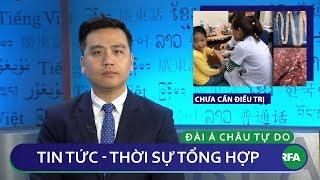 Tin nóng 24h 19.03.2019 | Trẻ em bị nhiễm sán ở Bắc Ninh chưa cần phải điều trị thumbnail