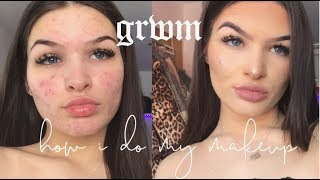 grwm: how i cover my acne & my everyday makeup