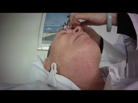 Will acupuncture help allergies?