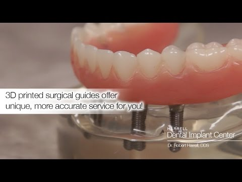 What Are Some Ways The Harrell Dental Implant Center Uses Surgical Guides