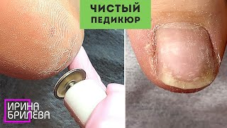 Чистый ПЕДИКЮР Обработка ТРЕЩИН дисками Ирина Брилёва