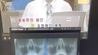 #축농증 에 대한 #HCN 서초방송 방송출연입니다 아하…