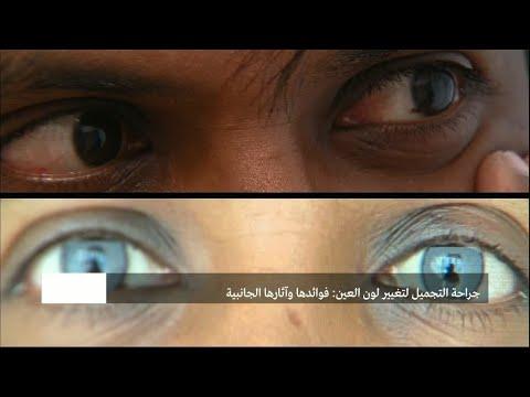 جراحة التجميل لتغيير لون العيون: مميزات العملية ومخاطرها  - نشر قبل 4 ساعة