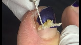 Remove the sharp pieces for nails