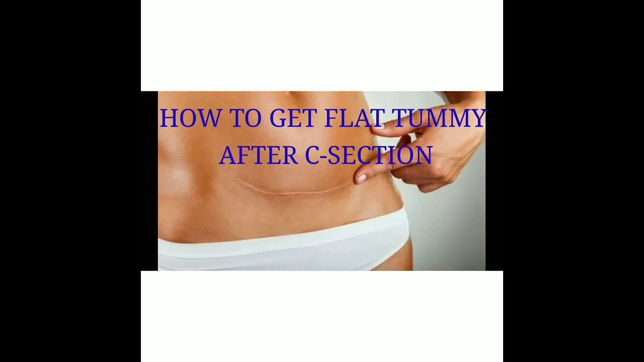 How to get flat tummy after C-Section - YouTube