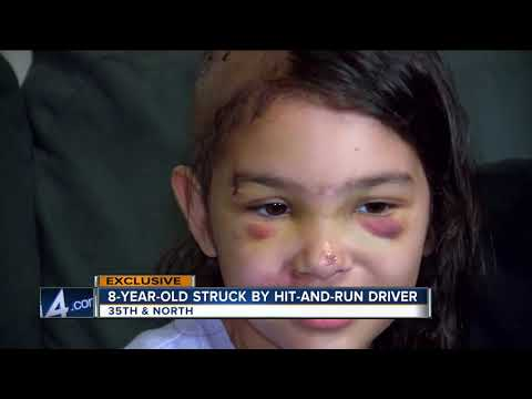 8-year-old girl survives hit and run accident near 35th and North