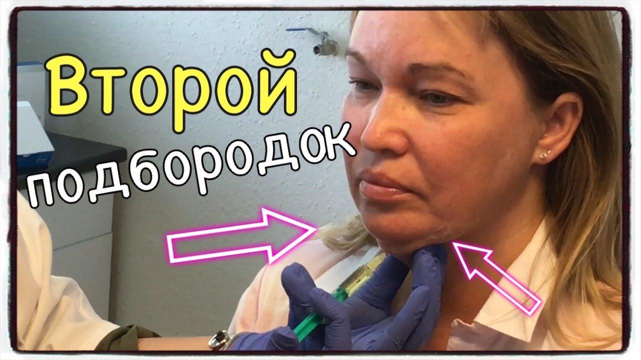 Второй ПОДБОРОДОК. Как УБРАТЬ ВТОРОЙ ПОДБОРОДОК | инъекции для похудения лица