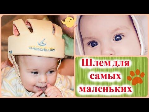 Детский шлем для самых маленьких. Опыт использования.