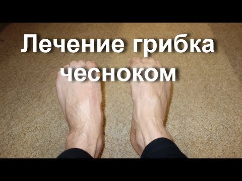 Микозы кожи -
