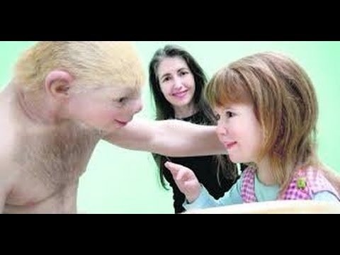 Patricia Piccinini * Relativity * Art Exhibition.* Galway ...