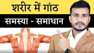 शरीर मे गांठ क्यों बनती है? क्या है सही इलाज/ By Dr. Arun Mishra