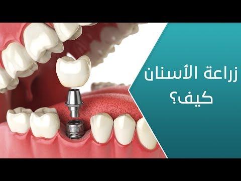 ما هي الإجراءات التجميلية بعد عملية زراعة الأسنان؟ - العيادة  - 13:59-2020 / 2 / 22