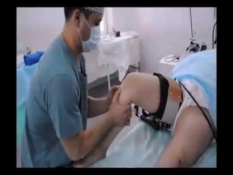 Сшивание связок коленного сустава цена клиники по лечению суставо