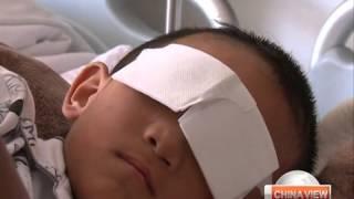Eye-gouged boy to get artificial eyes