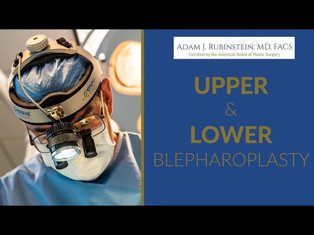 Upper And Lower Eye Lid Lift With Dr. Rubinstein Miami, FL 2020