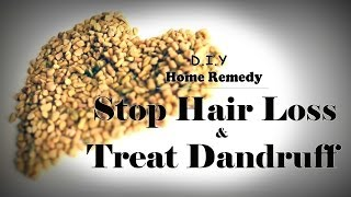 How To Stop Hair Loss and Treat Dandruff At Home Treatment and make hair grow long really fast