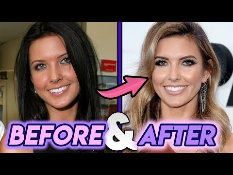 Audrina Patridge   Before And After   The Hills Star Plastic Surgery Transformation