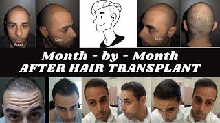 FUE Hair Transplant in India for Caucasians@DarlingBudsChandigarh
