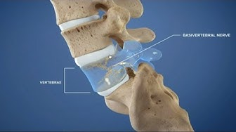 Лечение на болките в кръста