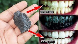मात्र 1 रूपये में दांत मोतियों जैसे नहीं चमके तो कहना   AMAZING Teeth Whitening Remedy